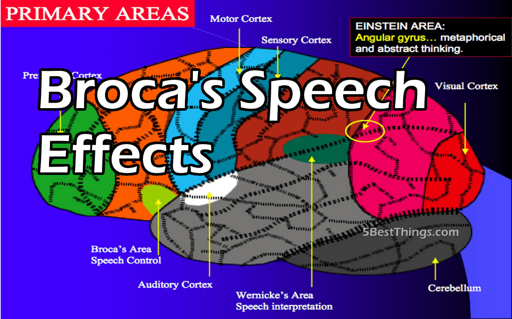 Broca's Speech Effects